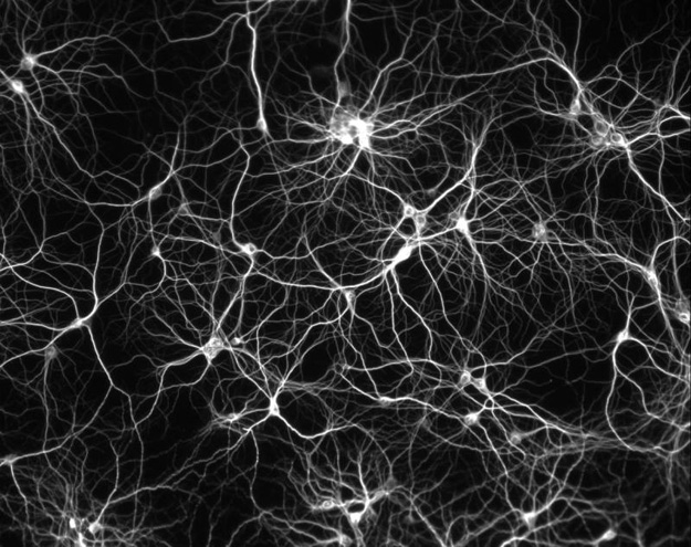 When our Neurons are Connected to the Net